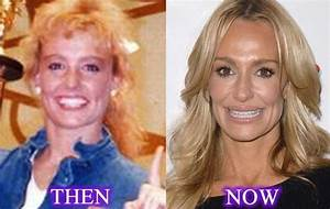 Taylor Armstrong beautiful housewife and plastic surgery