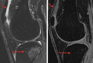 Imaging Specific To Cartilage Injury