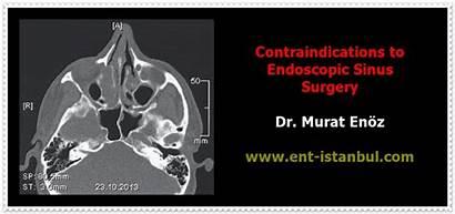 Surgery Sinus Endoscopic Fess Contraindications Functional Luc