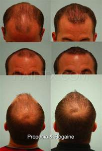 Propecia (Finasteride) Dallas | Hair Growth Medicine Plano, Tx