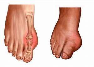 Crampes Au Pied : sympt mes de la goutte pied douleurs et arthrite ~ Medecine-chirurgie-esthetiques.com Avis de Voitures