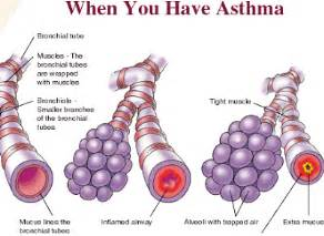 how do you get asthma bronchial asthma causes Asthma