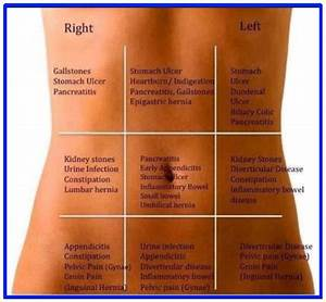 Typical  U0026 Atypical Ibs Pain Locations  A Complete In