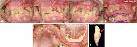 la parodontie un compl 233 ment de l orthodontie