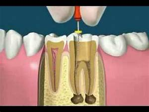Endodontics  Root Canal Treatment