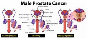 Male Prostate Cancer Diagram