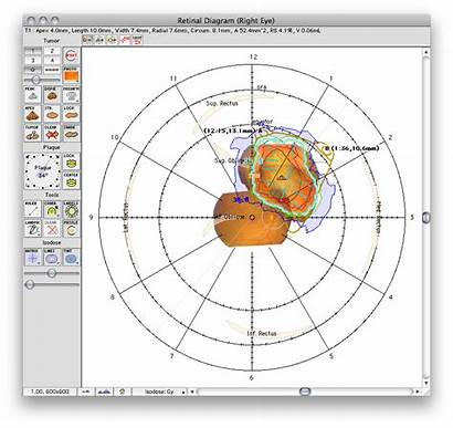 Diagram Retinal Window 2d Map Ps5 Eyephysics
