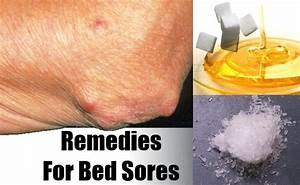 remedies for bed sores vitamins to cure bed sores risk With bed sores treatment at home