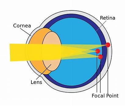 Astigmatism Lens Eye Svg Eyes Lenses Condition