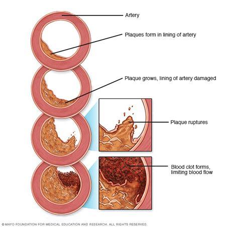 high cholesterol symptoms   mayo clinic