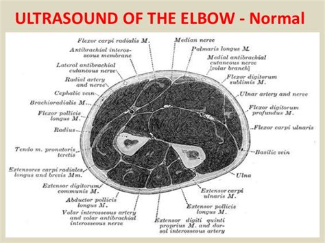 Presentation1.pptx, ultrasound examination of the elbow joint.