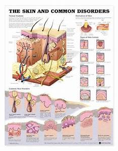 Lfa 99940 Chart The Skin And Common Disorders Shows