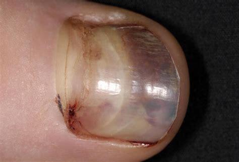 Bruised Nail Bed by Cancer Toenail Melanoma Quotes