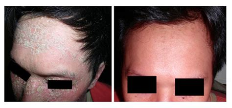 light treatment for psoriasis results of psoriasis phototherapy with narrowband uvb