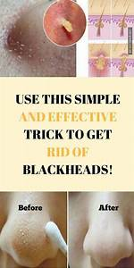 Use This Simple And Effective Trick And Get Rid Of