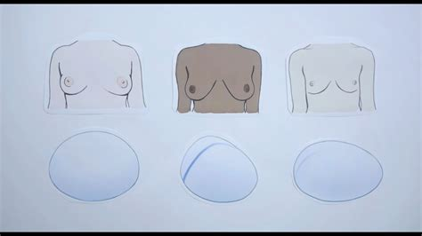 polytech  types  breast implants   youtube