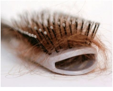excessive hair shedding after pregnancy normal and abnormal hair loss for