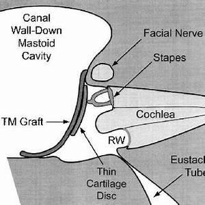 (PDF) Middle-Ear Mechanics of Type III Tympanoplasty ...
