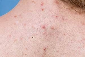 Acne Skin Texture Stock Images
