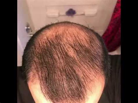 5 months using minoxidil - Rogaine 5% Before & After