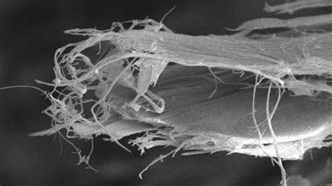 study sheds  light  asbestos related cancer cancer