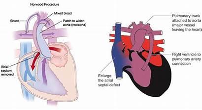 Heart Norwood Congenital Disease Left Shunt Bt
