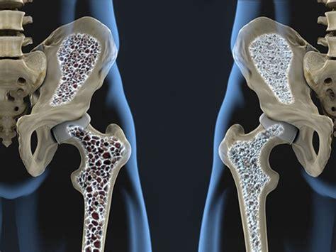 si鑒e de l oms lo sport fa all osteoporosi oppure no