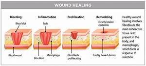 Wound Healing Center At Inova Loudoun Treats Complex Wound