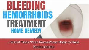 Cure Hemorrhoids In 48 Hours | Motavera.com