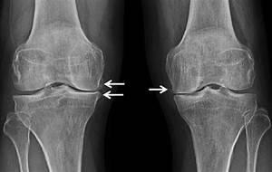 Degenerative Osteoarthritis Of The Knee Joint  There Is