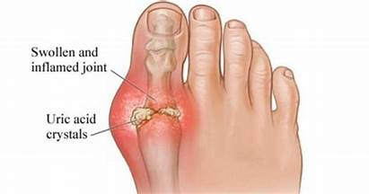 Gout Converther Remedies Remedydaily