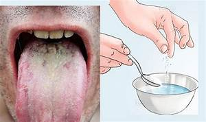 Home Remedies for Oral Thrush | Top 10 Home Remedies