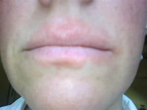 How I Healed the Rash Around My Mouth | Zi Zai Dermatology