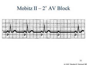 AV Block Mobitz Type 2