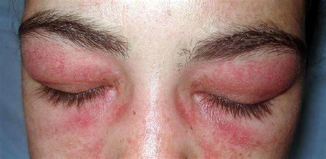 Eczeemplekken rondom de ogen, de mond en in neusplooien