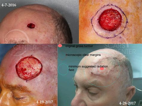 aggressive forehead scc skin cancer  reconstructive