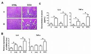 Old Mice Exhibited Exacerbated Inflammation After Ccl4