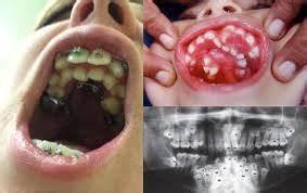 Douleurs Dents De Sagesse : l 39 odontome est une forme d 39 hyperdonthie la jeunesse de la chirurgie ~ Maxctalentgroup.com Avis de Voitures