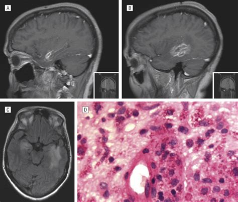 primary cerebral whipple disease presenting  kluever bucy