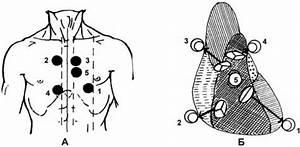 Лечение гипертонической болезни лекция