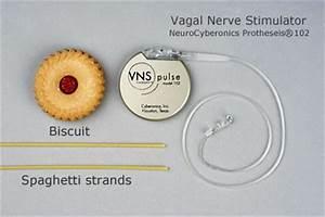 Neurology   Vagus Nerve Stimulation