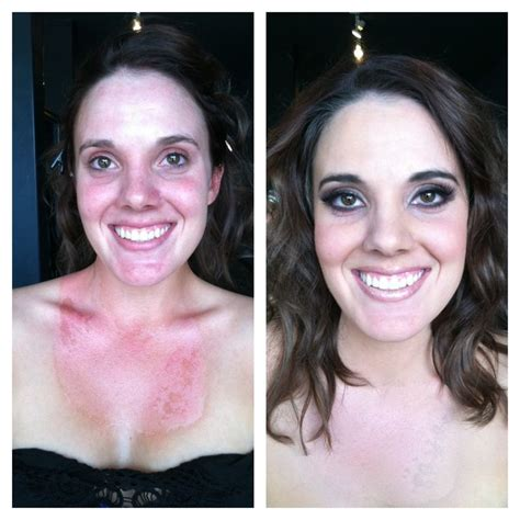 burn victim    makeup   afters