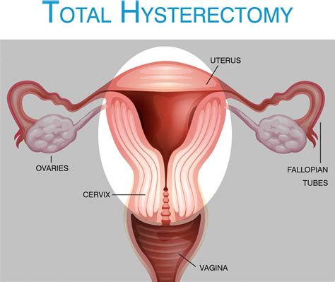 Total Abdominal Hysterectomy: Procedure Steps ...