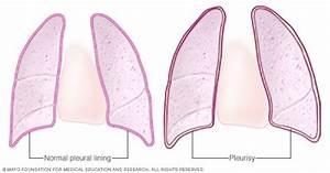 Pleurisy - Symptoms And Causes