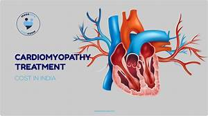 Cardiomyopathy Treatment Cost In India