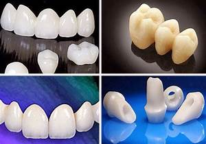 The Prestigious Dental Implant Center in Vietnam