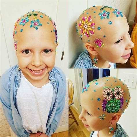 Crazy Hair Day Creatively Celebrated by Girl With Alopecia