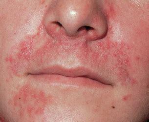 erdbeerallergie symptome mit bildern und tipps fuer allergiker