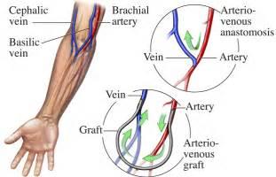 similiar diagram of the upper extremity fistula keywords, Cephalic Vein