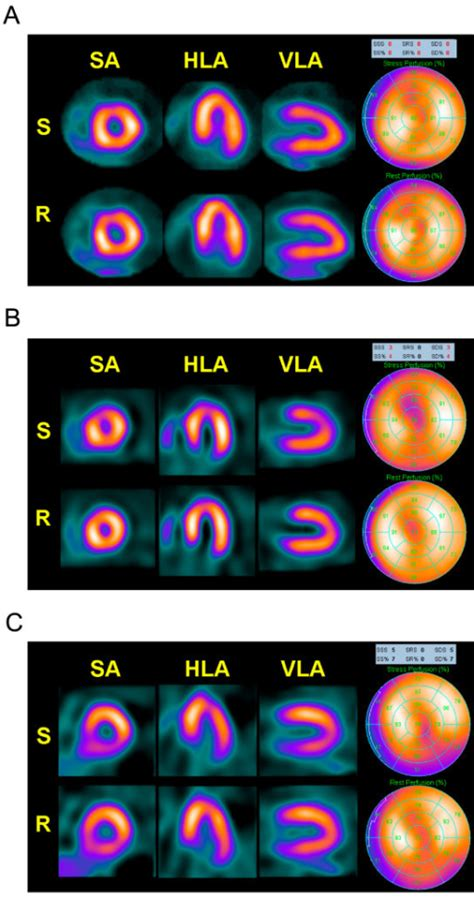 Images Corresponding To Myocardial Perfusion Spect Obta. Internet Content Filter Dentist In Hanover Pa. Duke University Nursing School. Merritt Island Health And Rehab. Garage Door Repairs Houston Cheap Mba Online. Dentists In Eau Claire Wi Knock It Out Moving. Austin Wedding Videographer Maple Hill Auto. Architectural Design Degrees. Expungement Lawyers In Nj History Of Alcohol